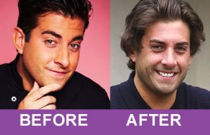 James arg argent nose job
