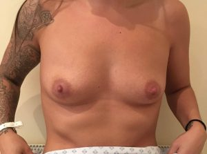 breast enlargement at the Belvedere Clinic before surgery- using 425cc motiva breast implants