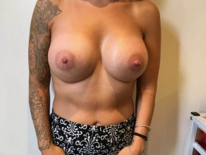 breast enlargement at the Belvedere Clinic after surgery- using 425cc motiva breast implants