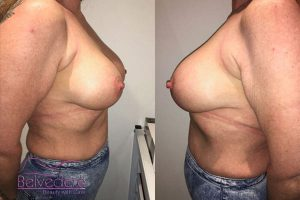 breast enlargement after surgery- with motiva breast implants - julie