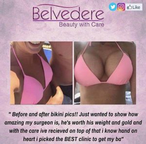 breast enlargement at the Belvedere Clinic before and after surgery- using motiva breast implants