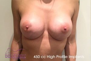 breast enlargement after surgery- 450cc high profile motiva breast implants - tina