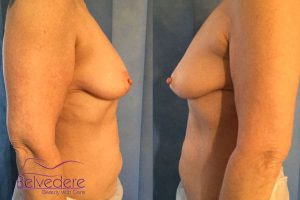 breast enlargement before surgery- with motiva breast implants - julie