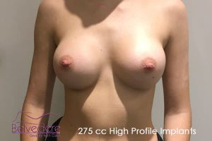 breast enlargement after surgery- 275cc high profile motiva breast implants - ellie