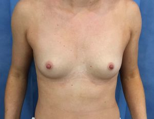 breast enlargement at the Belvedere Clinic before surgery- using 355cc motiva breast implants - kerry