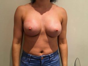 breast enlargement at the Belvedere Clinic after surgery- using 355cc motiva breast implants - kerry