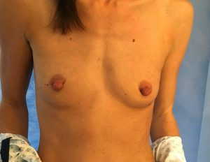 breast enlargement before surgery- using 375cc motiva breast implants - leigh