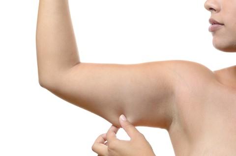 arm lift surgery london