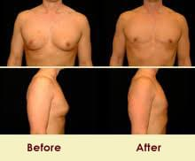 moobs gynecomastia before and after