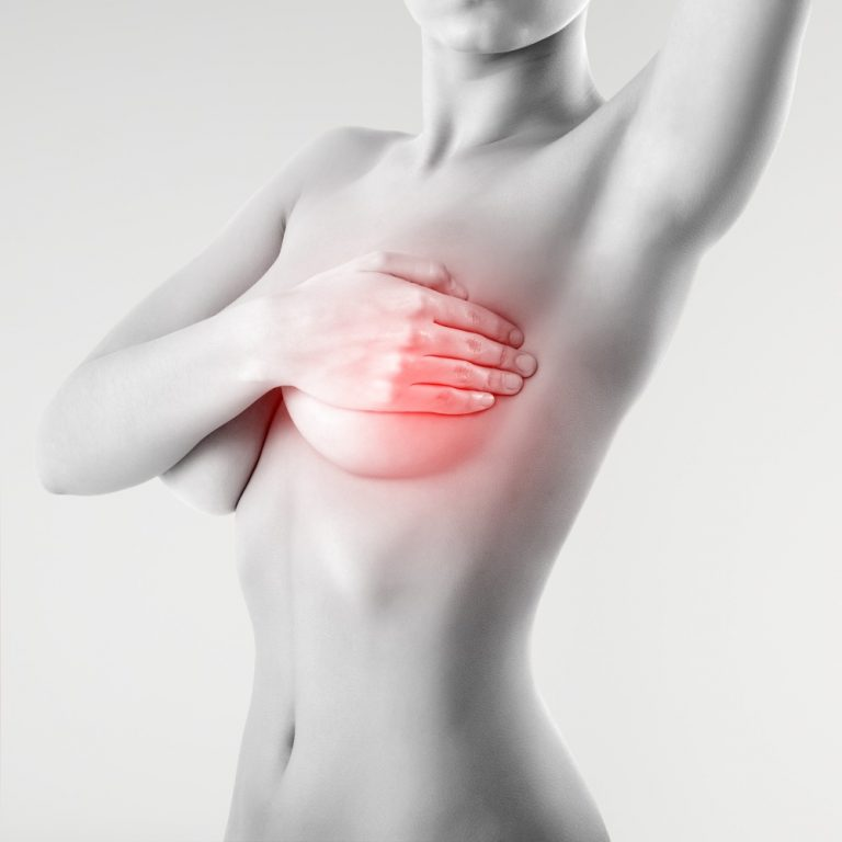 breast pain - breast implant removal